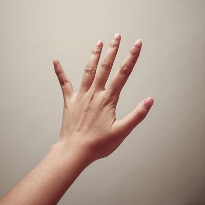 riconoscere la psoriasi alle unghie delle mani