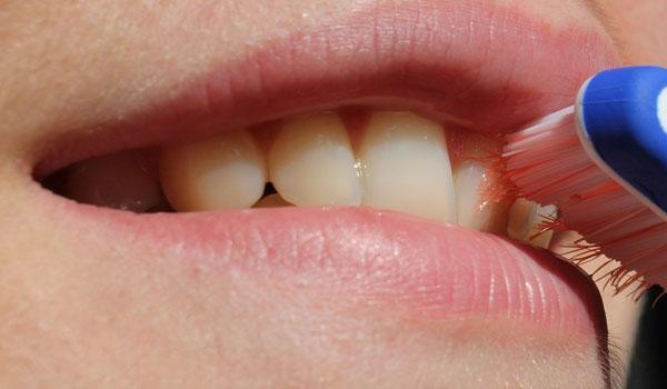 quanto pagare una pulizia dentale